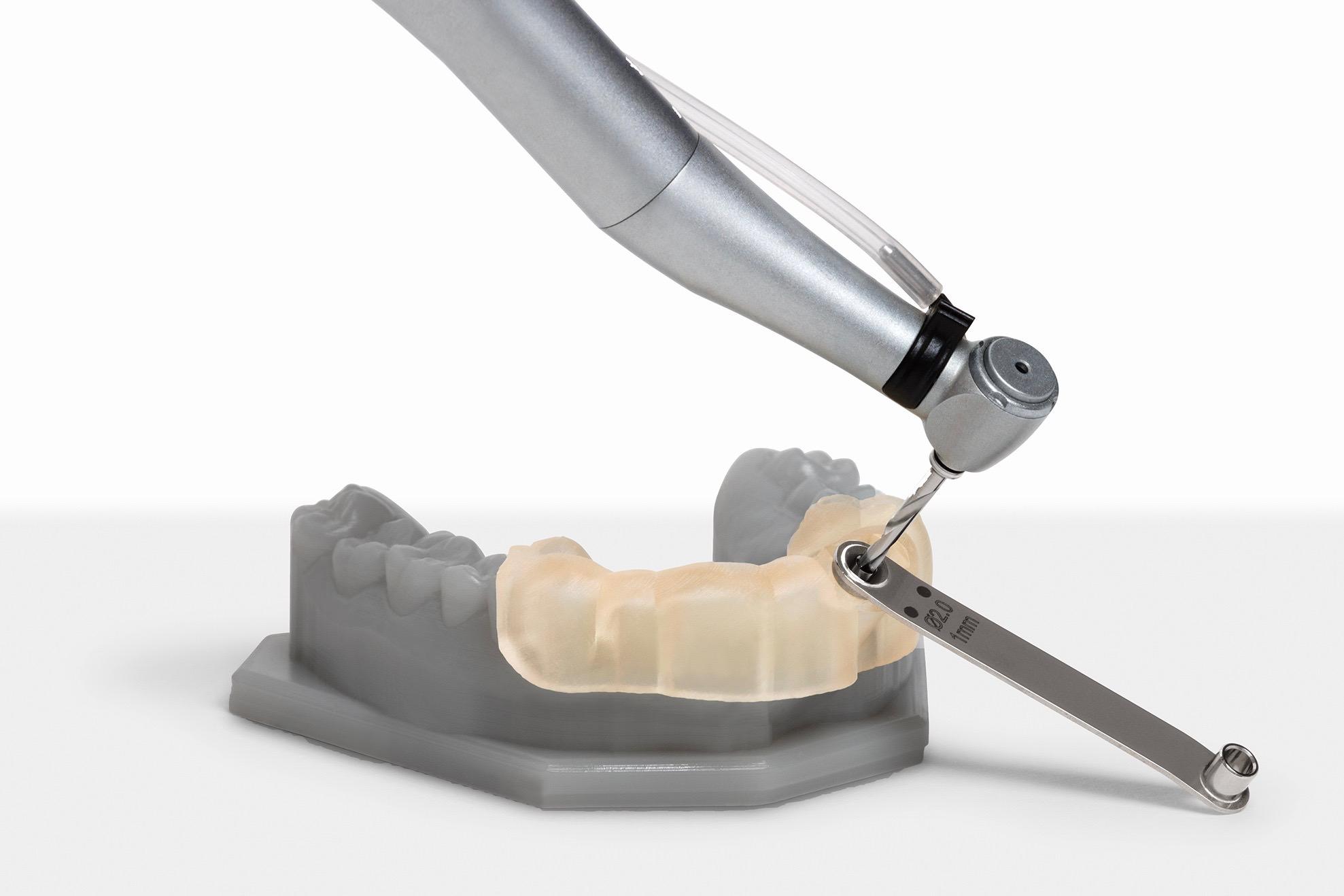 Auf dem Form 2 gedrucktes Dentalmodell mit biokompatibler Bohrschablone.