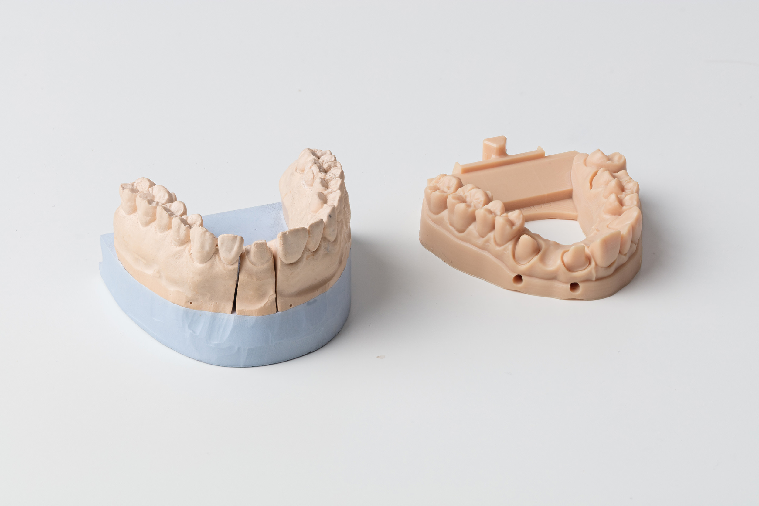 Traditional sectioned gypsum model and a 3D printed crown model with removable dyes made from Formlabs' Dental Model Resin.