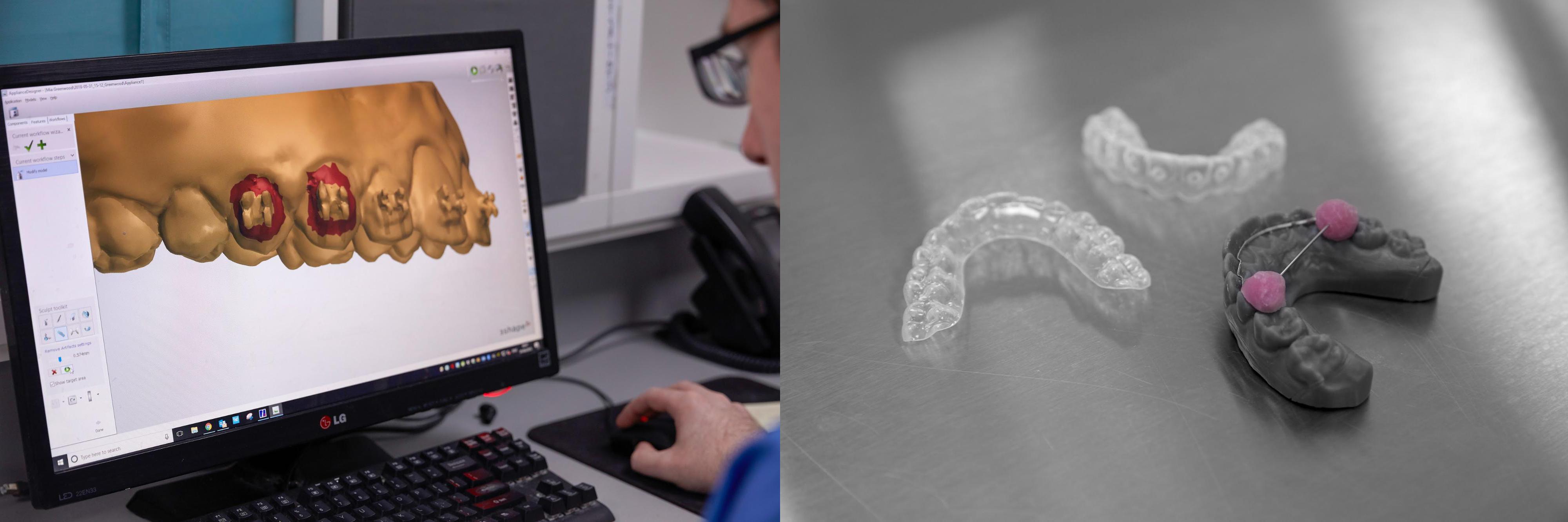 procédures de production numériques en odontologie : logiciel de CAO et modèles imprimés en 3D sur la Form 2 SLA.