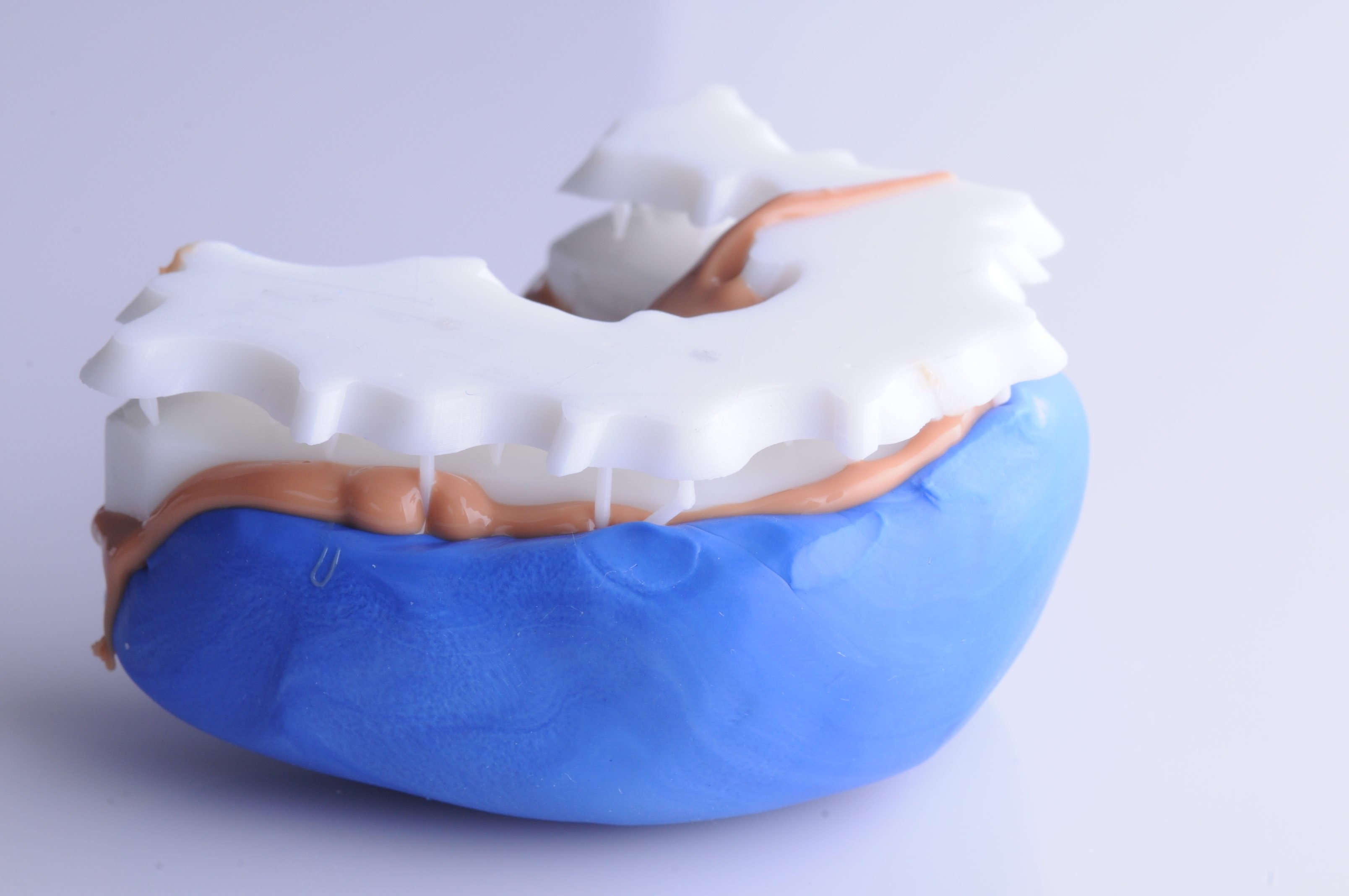 The 3D printed dental model overlapped with the restorations is placed in a silicone index to create a negative of the teeth. With the traditional analog method, the practioner would take a regular impression from the patient and send it to a dental technician who would start adding wax over the stone model, drop by drop, tooth by tooth.
