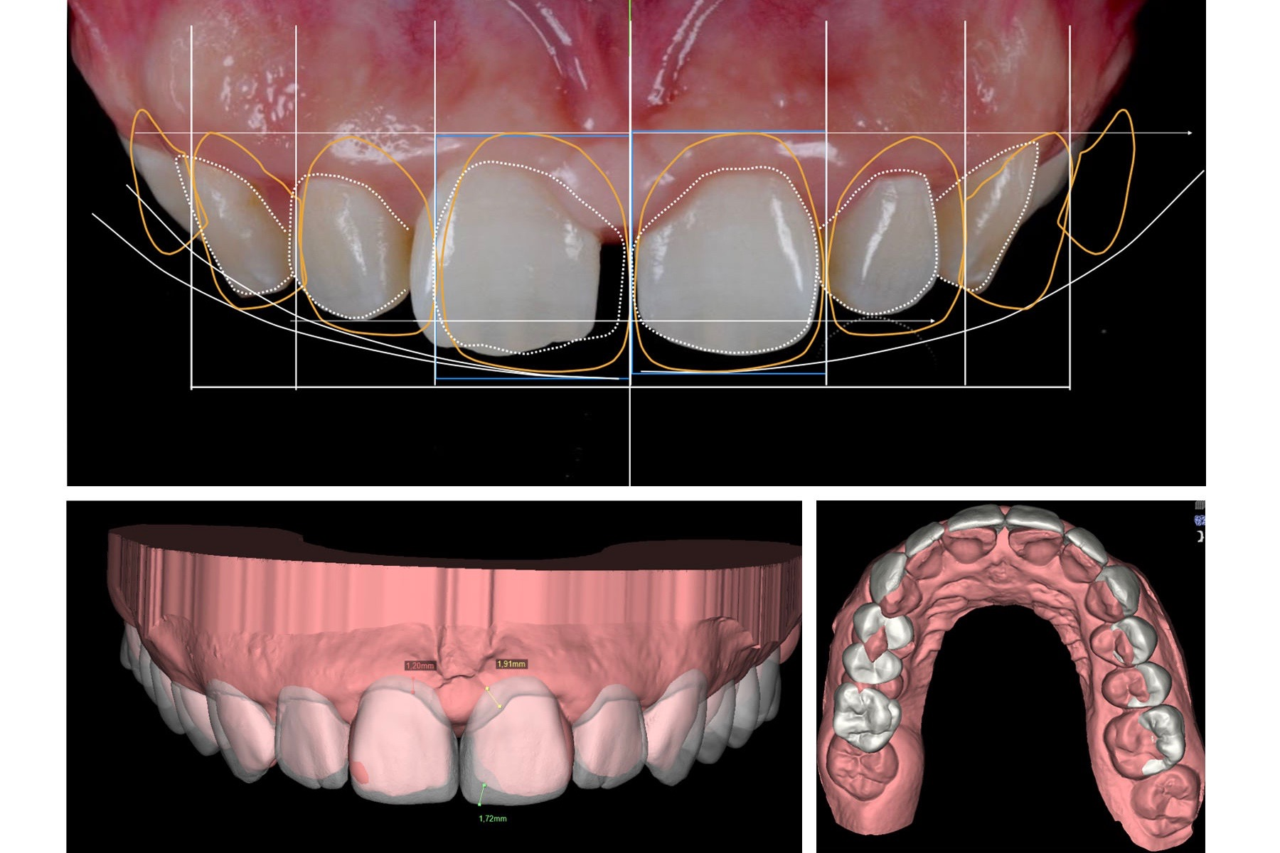 Practitioners use a digital library of different shapes and forms provided in DSD NEMO software to overlap teeth for a given aesthetic procedure.