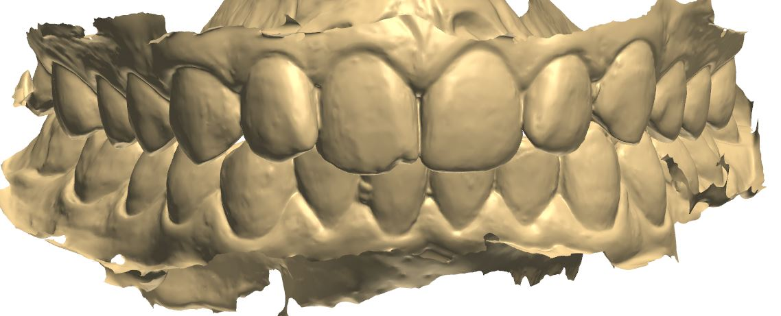 Scanned teeth