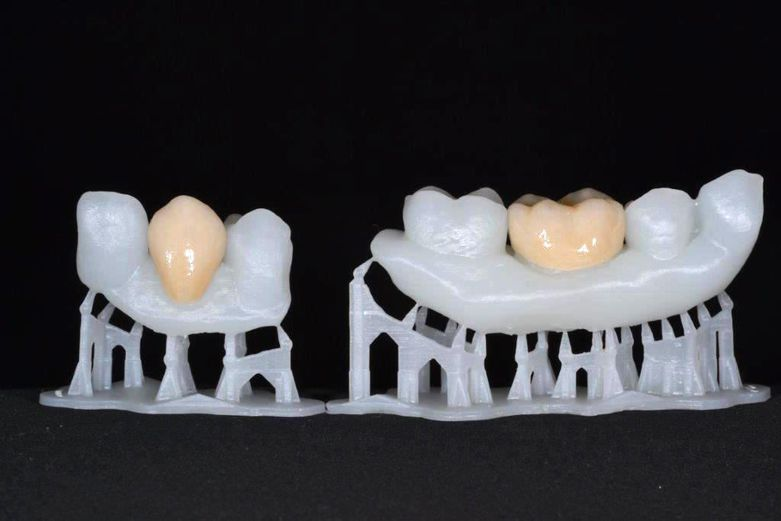3D Printed teeth with glazed crowns