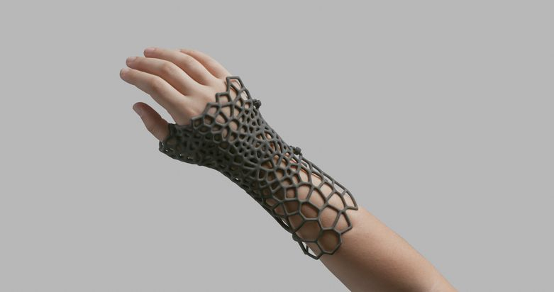 Hand splint designed with a complex pattern to reduce weight.