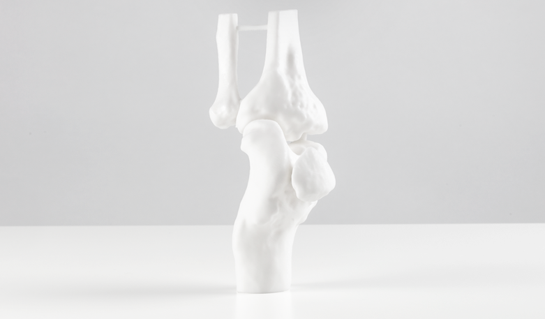 A knee joint 3D printed in matte White Resin.