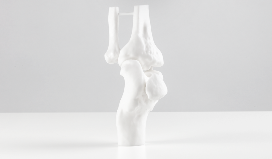 A knee joint 3d printed in matte white resin