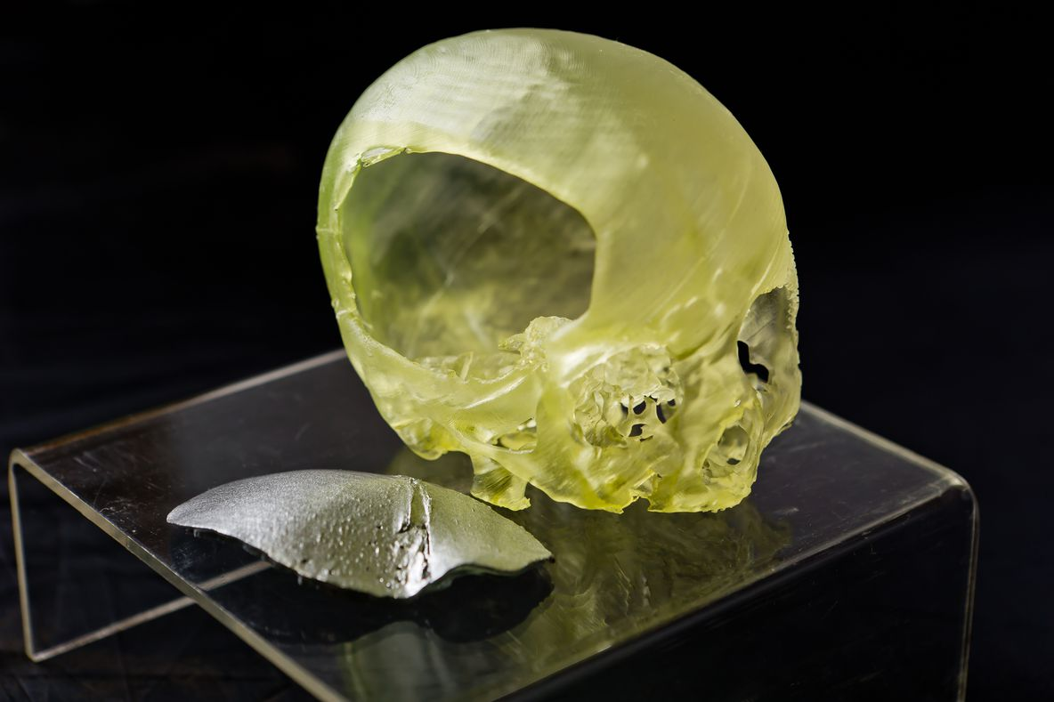 3D printed scans from medical imaging data