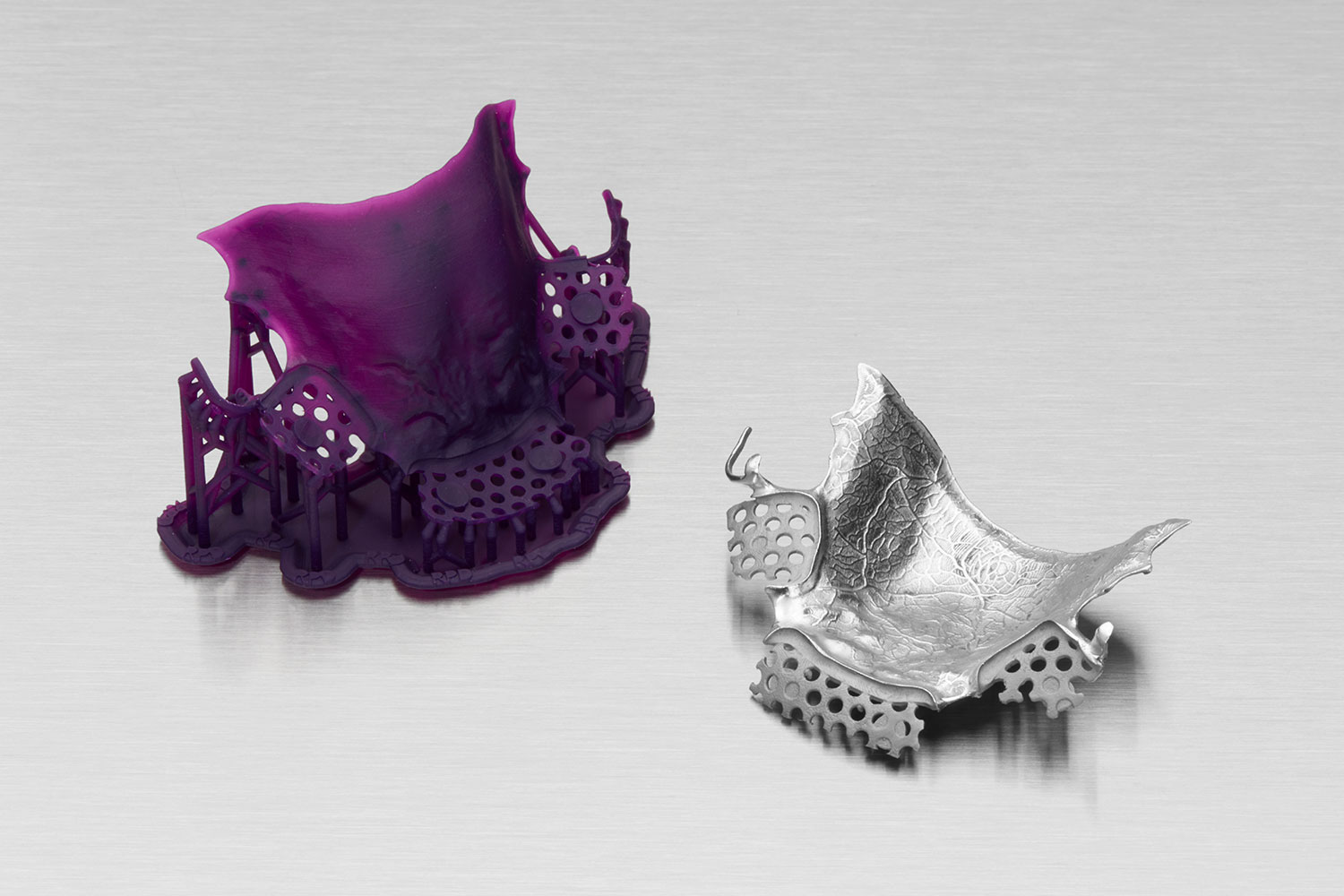 A 3D printed removable partial denture pattern and final cobalt-chromium frame